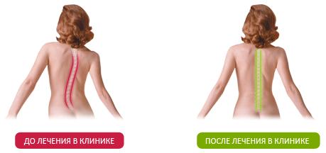 Простые упражнения при остеохондрозе позвоночника