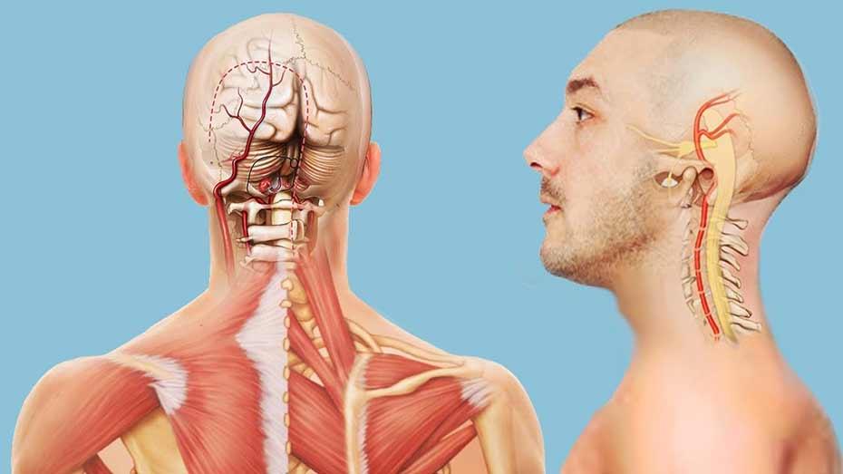 Шейный остеохондроз защемление артерии лечение фото